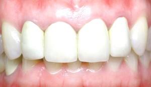 Металлокерамические зубы