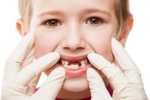 Профилактика заболеваний десен у детей