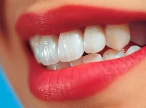 Бондинг зубов