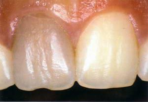 потемнение зубной эмали