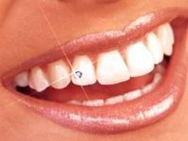 Камушек на зуб