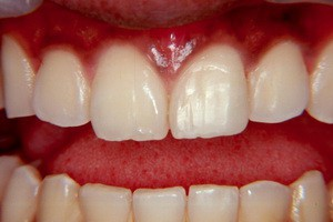 Лечение передних зубов