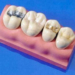 Материалы для зубных пломб1
