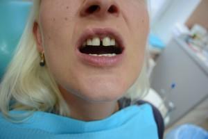 Щель между передними зубами. Что делать?