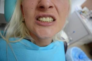 Щель между зубами закрыта при помощи фотополимерного композита