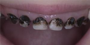Серебрение зубов