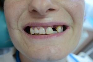 Что делать если удален передний зуб?