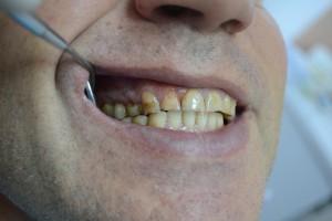 Что такое клиновидный дефект зуба?