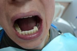 Как выглядят импланты во рту?