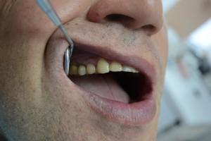 Лечение клиновидного дефекта