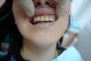 Плохая форма и цвет зубов