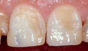 повреждение эмали зуба