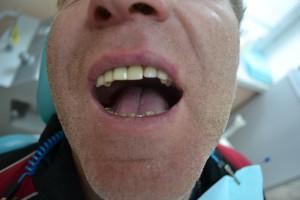 Съемный протез на зуб