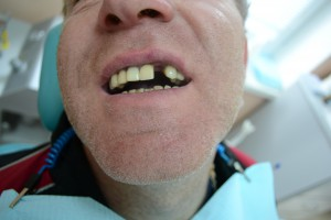 Удален 2 зуб