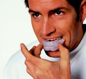 Спортивные каппы разрушают зубы
