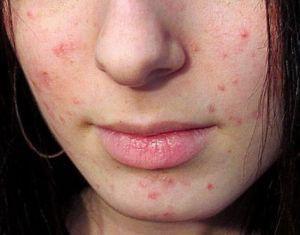 Угревая сыпь может быть следствием кариеса