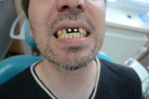 Металлические вкладки установлены в полости рта