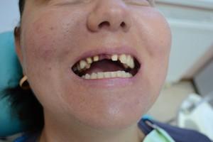 Обточенные передние зубы