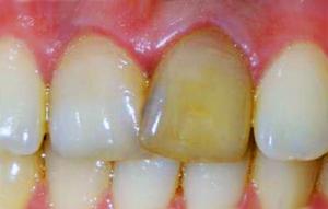 чернеют зубы