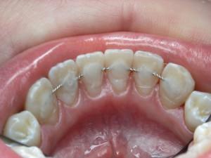 шинирование зубов Сумы