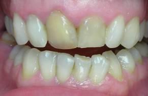 Дисколорит зубной эмали