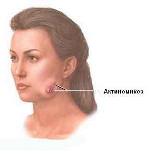 Лечение актиминоза
