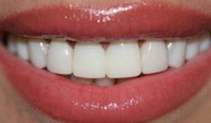 Виниры на зубы в Сумах