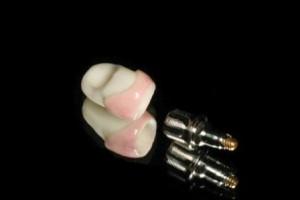 Что такое абатмент в имплантации?