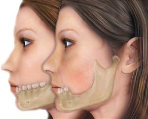 Имплантация зубов при значительной атрофии челюсти
