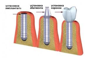 Как быстро приживаются импланты?