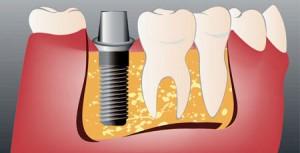 Установка абатмента в стоматологии