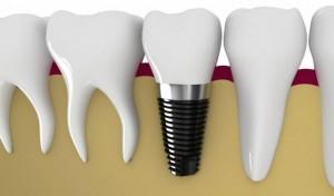 Этапы проведения лазерной имплантации зубов