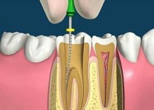 Боль в депульпированном зубе