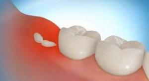 Какие причины ретенции зубов?
