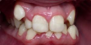 Ретенция зубов