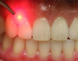 Будущее имплантации - лазеры