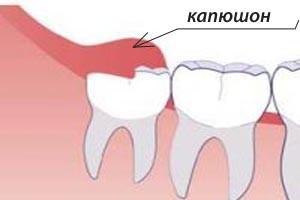 Ретинированный зуб в стоматологии