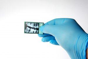 О вреде рентгена зубов