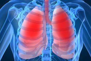 Пневмония как следствие плохих зубов