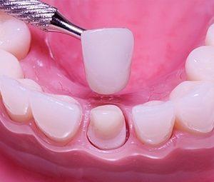 Несъемное протезирование зубов в Сумах