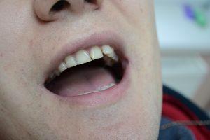 Диспропорциональный передний зуб