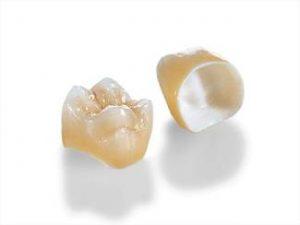 коронки зубные