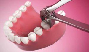удаление зуба сумы