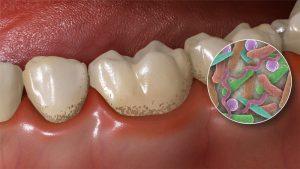 Профилактика зубного налета и камня