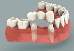 Зубной мост (Сумы)