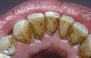 камень зубы