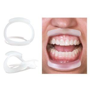 Применение ретрактора в ортодонтии
