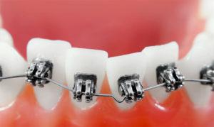 Как брекеты выравнивают зубы?