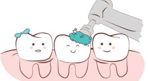 Когда следует делать профессиональную чистку зубов?