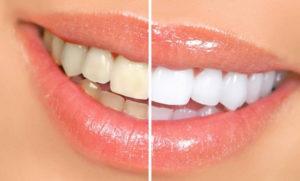Что такое эстетическая стоматология?